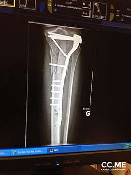 Camille Crimson's x-ray of the hardware to fix her shattered tibial plateau